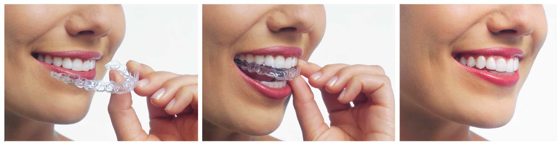 Cost of Invisalign at Benko Orthodontics at Sarver Kittanning Butler PA