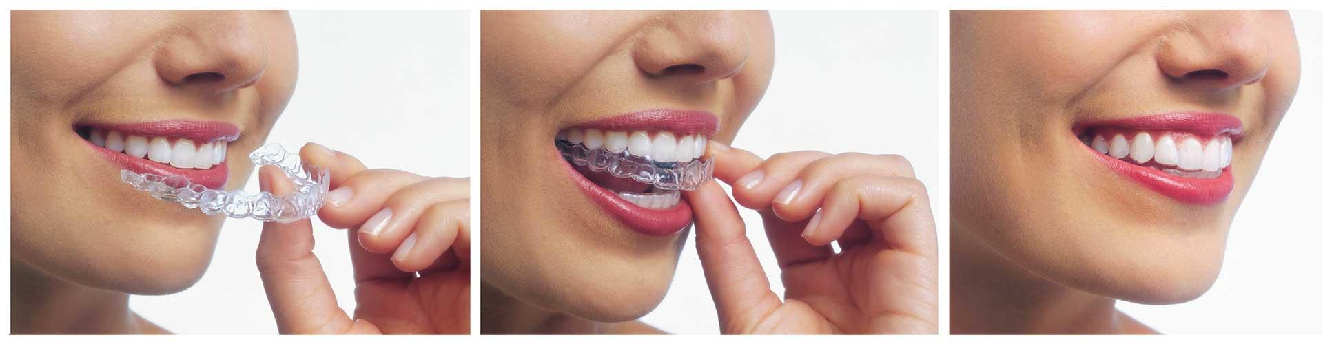 Cost of Invisalign at Benko Orthodontics at Sarver Kittanning Butler PA