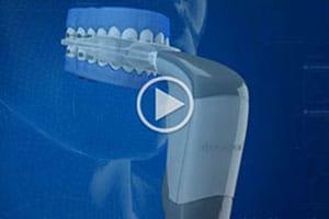 AcceleDent at Benko Orthodontics in Sarver Kittanning Butler PA